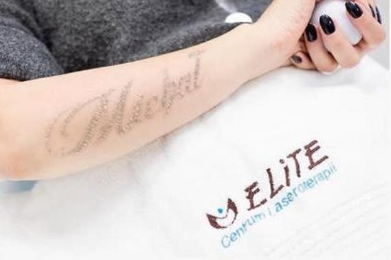 Dominika Tajner Próbuje Pozbyć Się Tatuażu Begiopl